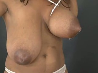 Store Brystvorter