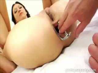 Analno prolapsing pri the gynecologist