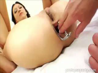 Πρωκτικό prolapsing στο ο gynecologist